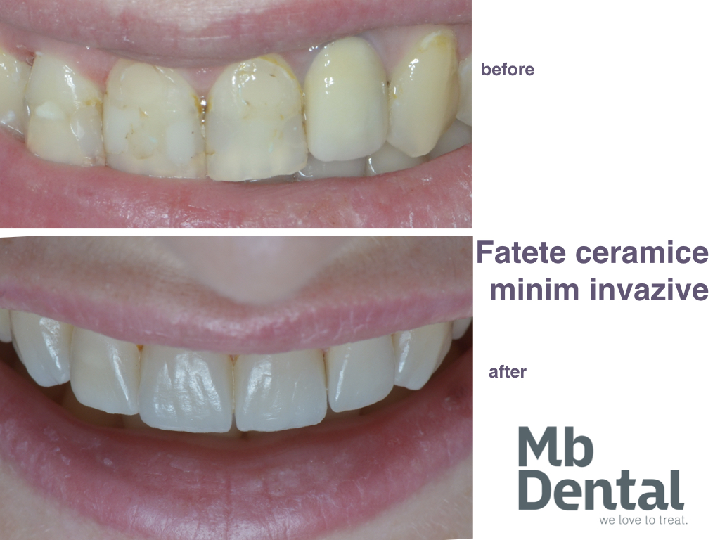 https://mbdental.ro/wp-content/uploads/2019/11/fatete-dentare-ceramice-mb-dental-cluj-.001.jpeg