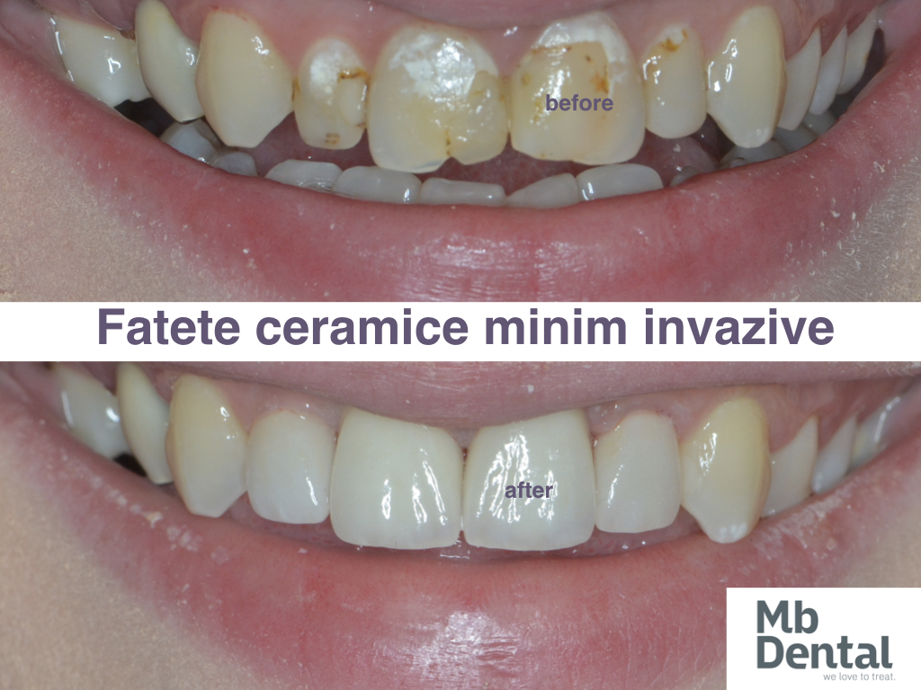 https://mbdental.ro/wp-content/uploads/2019/11/fatete-dentare-ceramice-mb-dental-cluj-.003.jpeg